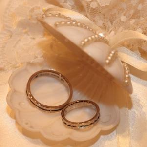 結婚指輪をチタンにすれば金属アレルギーでも大丈夫