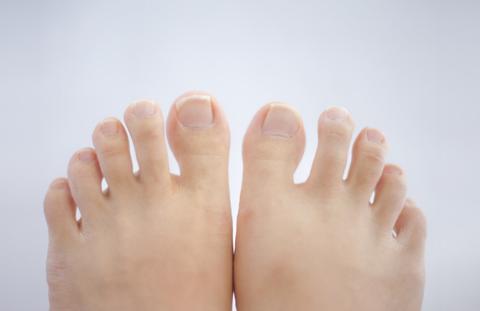足の親指が巻き爪で痛い